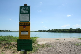 The yellow sign warns visitors to Green Valley State Park of high levels of microcystin, a liver toxin that can cause skin rashes, gastrointestinal issues and, in high doses, can lead to liver failure. Pictured July 31, 2015.