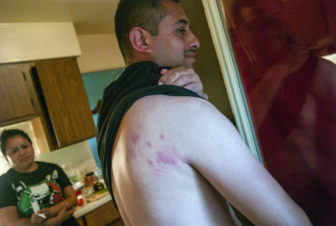 Jose Veja, a 36-year-old from Texas living at the Pine Creek housing facility, pulls up his shirt to show a back covered in beg-bug bites.