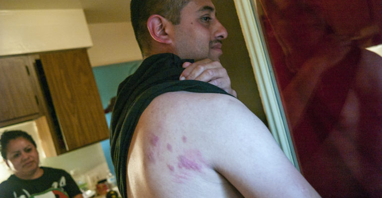 Jose Veja, a 36-year-old from Texas living at the Pine Creek housing facility, pulls up his shirt to show a back covered in beg-bug bites on June 16, 2016.